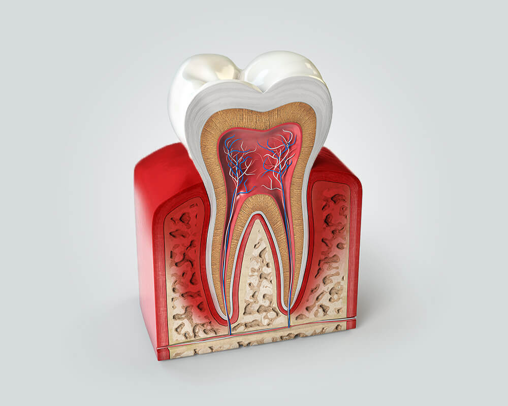 Parodontitisbehandlung Langenfeld